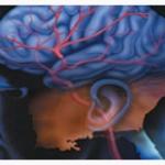 Sinsi Felç Hafızayı Zayıflatıyor