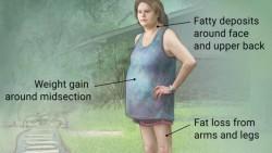 Cushing Sendromu Diye Bir Hastalık