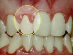 Diş Eti Çekilmesi ve Göğüs Kanseri